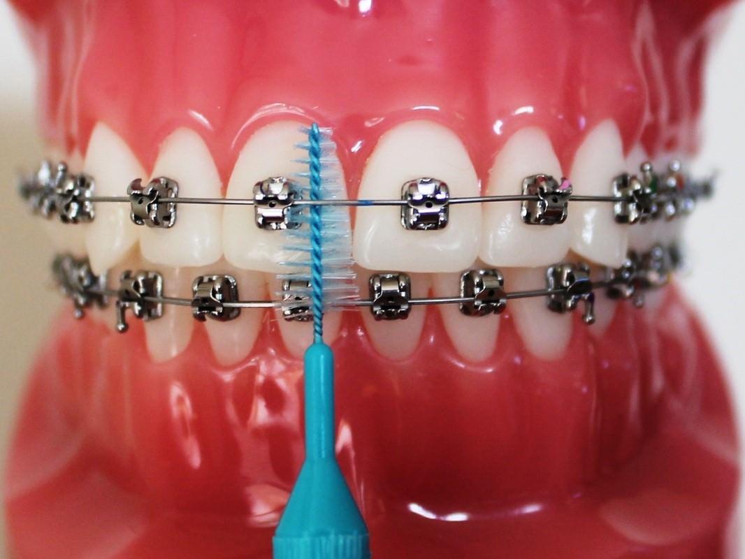 مسواکها با حرکات بالا به پایین بین دو براکت حرکت دهید. برای هر جهت چند مرتبه این حرکت را تکرار کنید و سپس به براکت بعدی بروید. به همین صورت تمام دندانها را تمیز کنید.