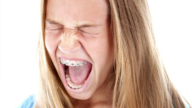 آیا براکت ارتودنسی درد دارد؟