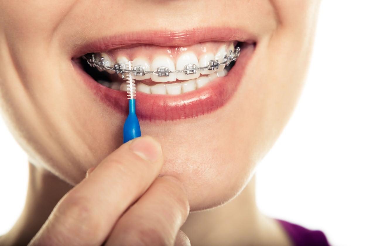 رعایت بهداشت دهان و دندان در دوران درمان ارتودنسی
