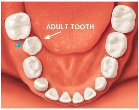 شکل- به علت کشیدن زود هنگام دندان شیری، فضایی که باید برای بیرون زدن دندان دائمی حفظ میشد (دندانی که با فلش سفید رنگ به آن اشاره شده است)، توسط دندان مجاور گرفته شده در نتیجه دندان دائمی از محل نامناسبی بیرون زده است.