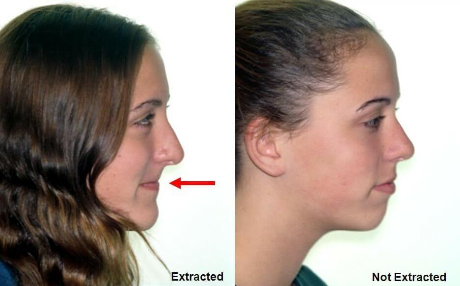 شکل- مقایسه درمان ارتودنسی با کشیدن دندان (تصویر سمت چپ) و بدون کشیدن دندان و با کمک وسیله های فانکشنال ارتودنسی (تصویر سمت راست).