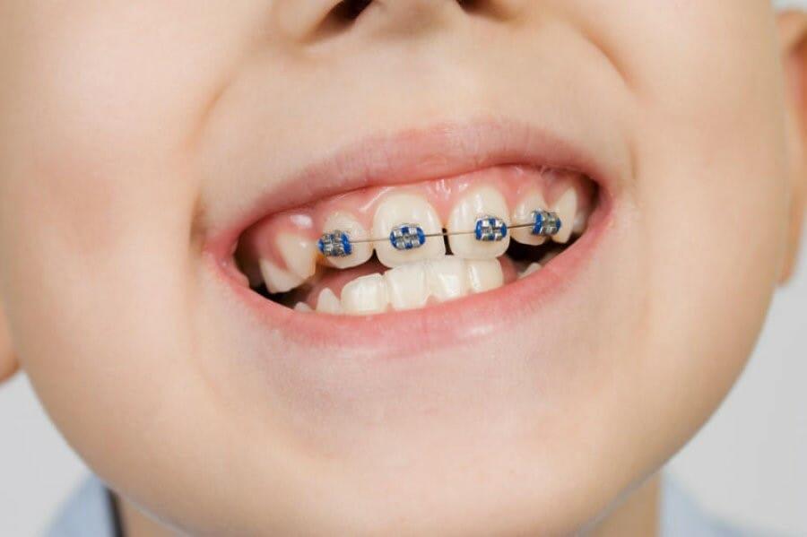 از دست دادن زود هنگام دندان شیری