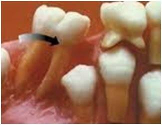 شکل- به علت خالی ماندن جای دندان شیری، دندان مجاور به سمت جای خالی کج شده و در نتیجه دندان دائمی زیر آن دیگر نمیتواند از لثه بیرون بزند در نتیجه در زیر لثه می ماند (نهفتگی دندان).