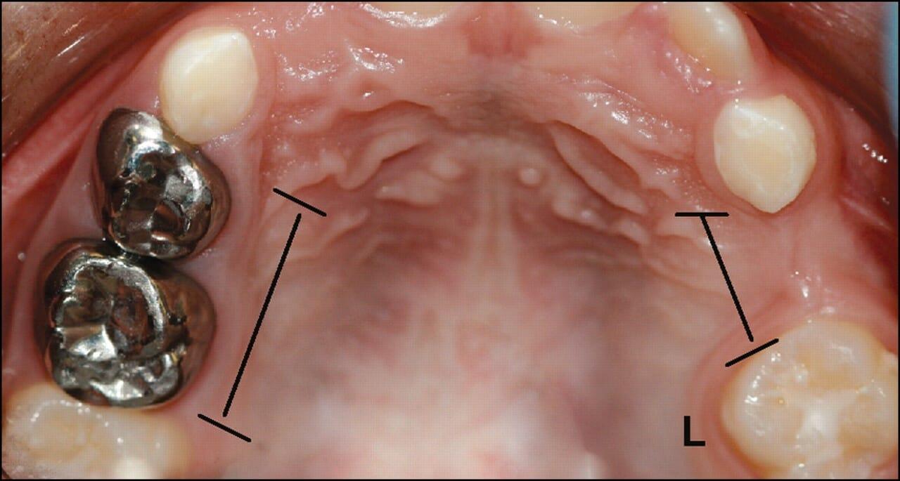 شکل- در تصویر بالا در سمت چپ قوس دندانی در حد فاصل بین دو دندان عقبی و جلویی ، دو دندان آسیاب شیری (با روکش نقره ای) قرار گرفته اند در حالی که در سمت راست قوس دندانی به علت عدم وجود دندان شیری (یا فضا نگهدار) در حد فاصل بین این دو دندان عقبی و جلویی، فضا کاهش یافته و تنها برای بیرون زدن یک دندان جا باقی مانده است.