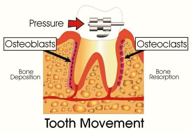 شکل- همانطور که در تصویر بالا مشخص است در جلوی دندان در حال حرکت استخوان حل شده و در پشت آن استخوان جدید ساخته میشود.