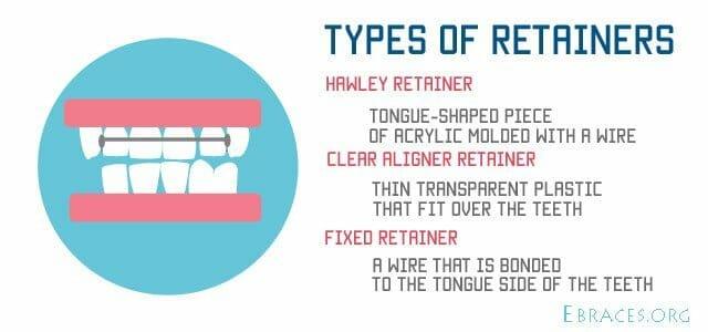 روشهای کاهش فاصله بین دندانها