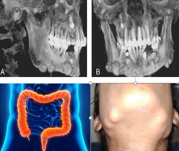 علت و درمان رویش دندان اضافه