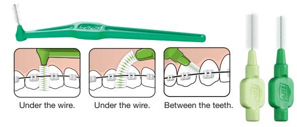 مراقبت از دندانها و ابزارهای ارتودنسی
