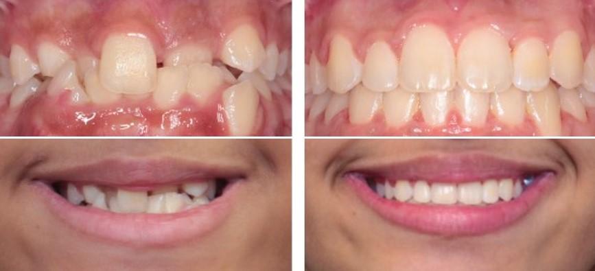 کشیدن دندان در ارتودنسی