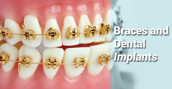درمان ارتودنسی روی ایمپلنت های دندانی