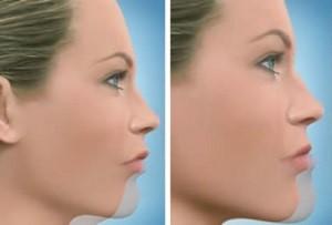 جراحی فک و درمان ارتودنسی