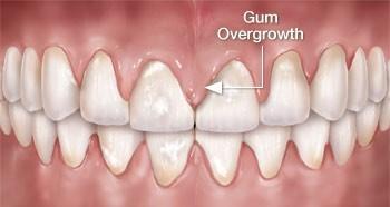 فشار خون و بهداشت دهان و دندان