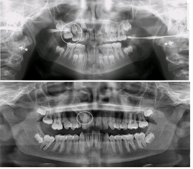 دندان نهفته و درمان ارتودنسی