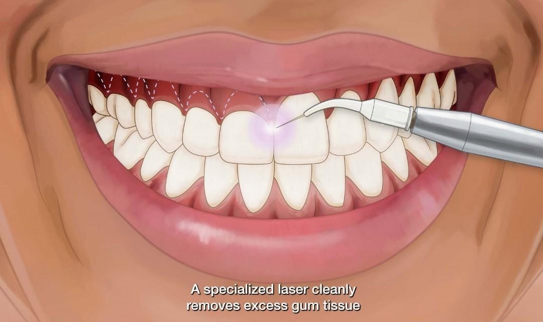 کاربرد لیزر در ارتودنسی