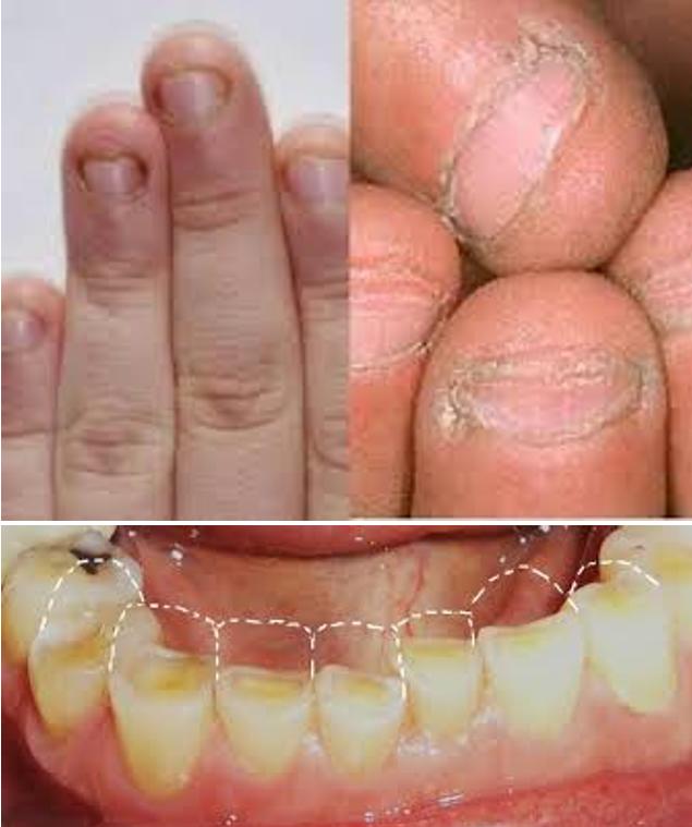آسیب جویدن ناخن به دندان ها و براکت های ارتودنسی