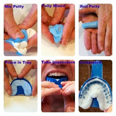 محافظ دهان و دندان در ارتودنسی