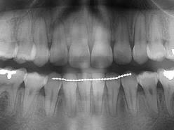 ارتودنسی و تحلیل ریشه دندان – بخش دوم