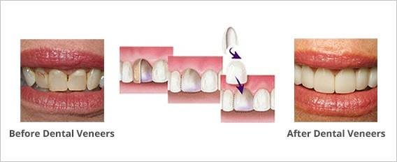 آنچه باید قبل از دریافت ونیرهای دندانی بدانید