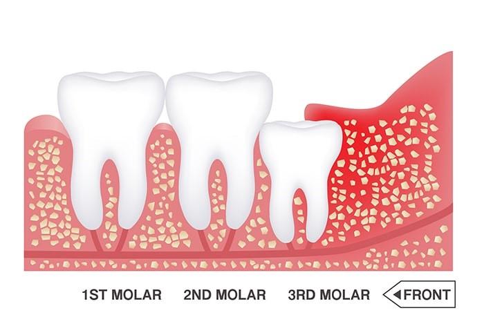 درمان ارتودنسی و دندان عقل