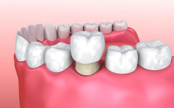 انواع روکش های دندانی