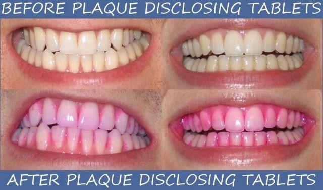 مراقبت از ایمپلنت دندانی