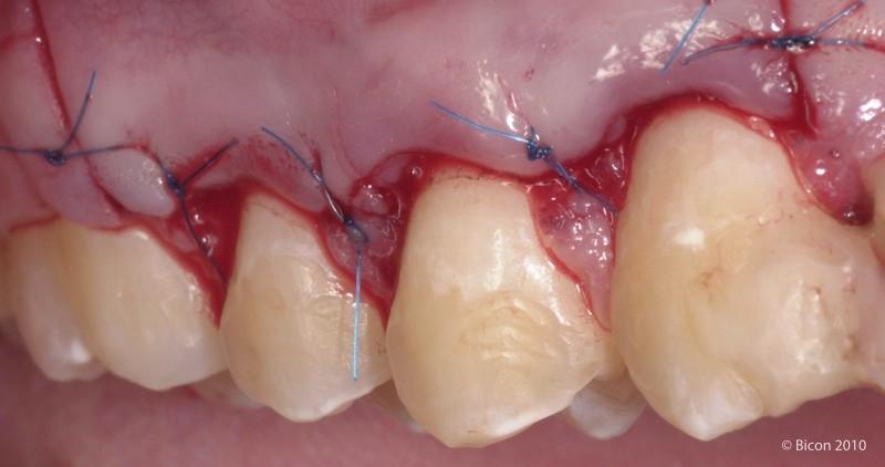جراحی افزایش طول تاج دندان