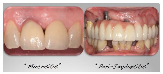عفونت ایمپلنت دندانی