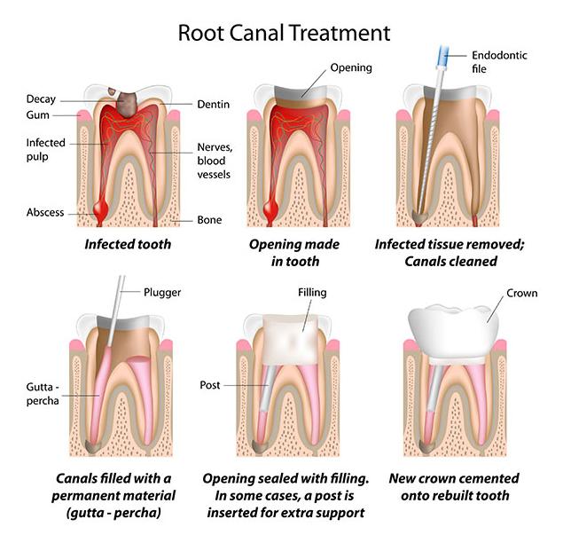 درمان ریشه یا عصب کشی