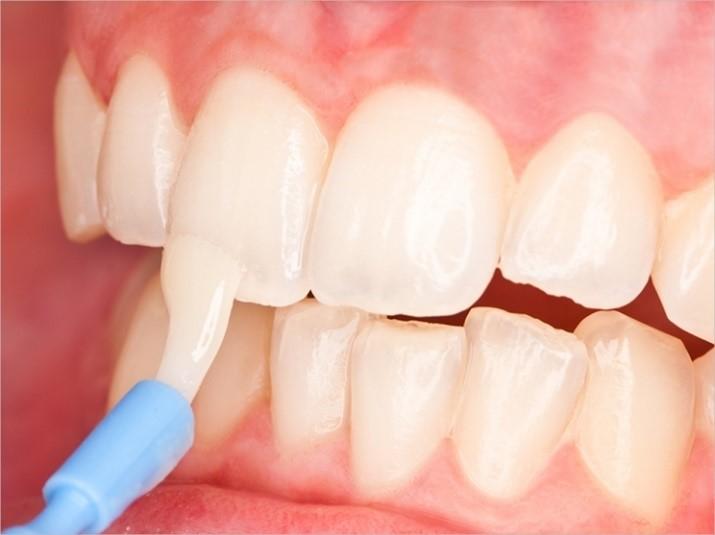 لکه سفید دندان پس از ارتودنسی