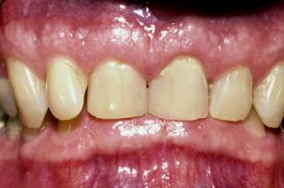 اوربایت یا جلو آمدگی دندان های فک بالا